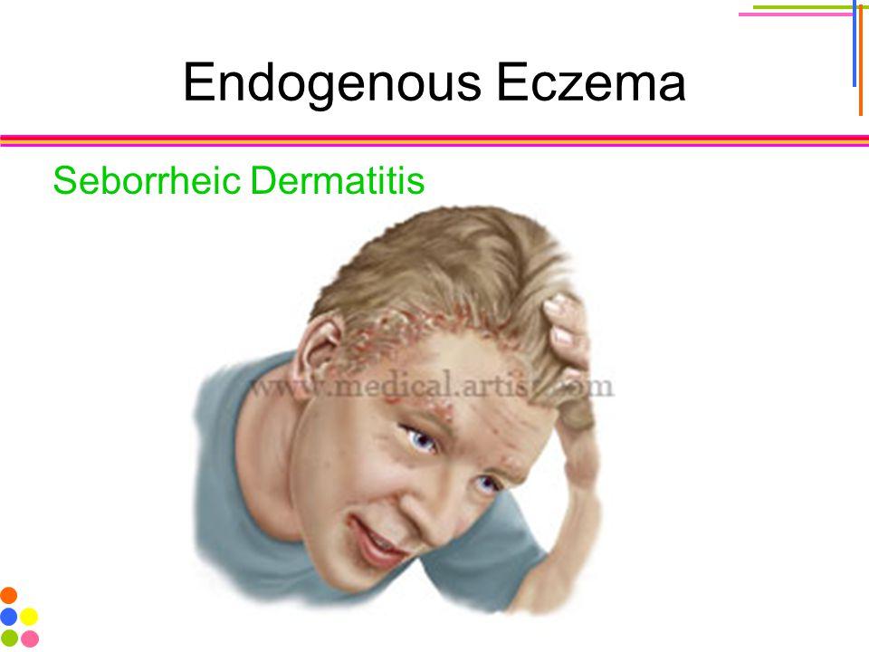Endogenous Eczema Seborrheic Dermatitis