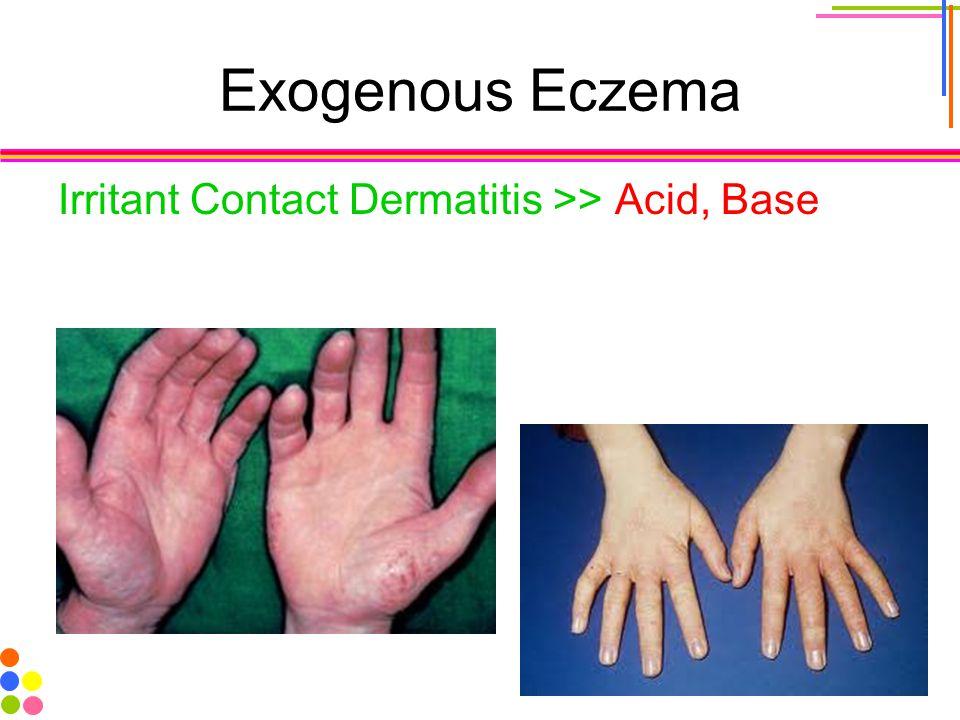 Exogenous Eczema Irritant Contact Dermatitis >> Acid, Base