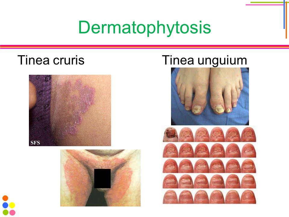 Dermatophytosis Tinea crurisTinea unguium
