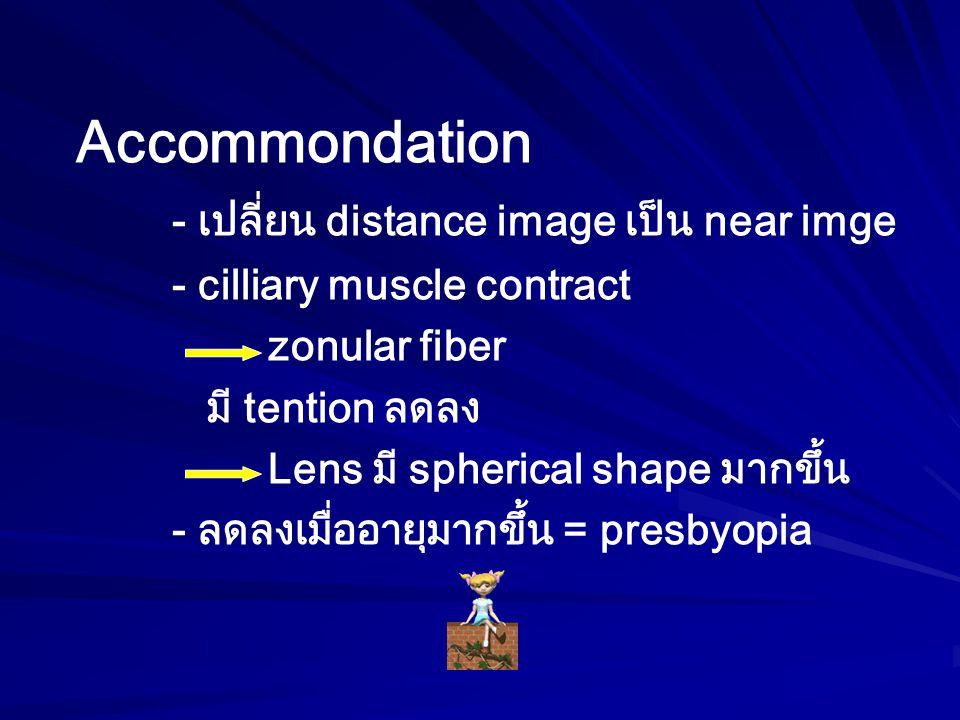 การจำแนกชนิดของต้อกระจก 1.แบ่งตามอายุที่เกิด Congenital Juvenile Senile 2.