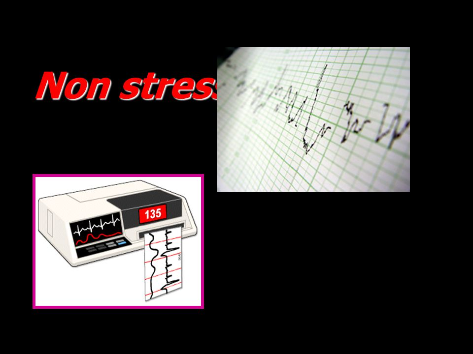 Non stress test