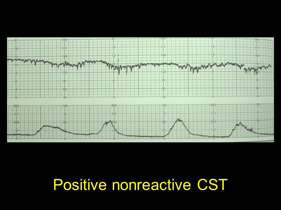 Positive nonreactive CST
