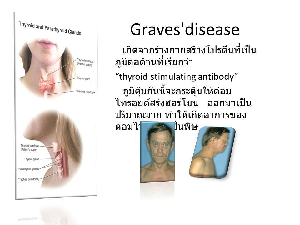 "Graves'disease เกิดจากร่างกายสร้างโปรตีนที่เป็น ภูมิต่อต้านที่เรียกว่า ""thyroid stimulating antibody"" ภูมิคุ้มกันนี้จะกระตุ้นให้ต่อม ไทรอยด์สร่งฮอร์โม"
