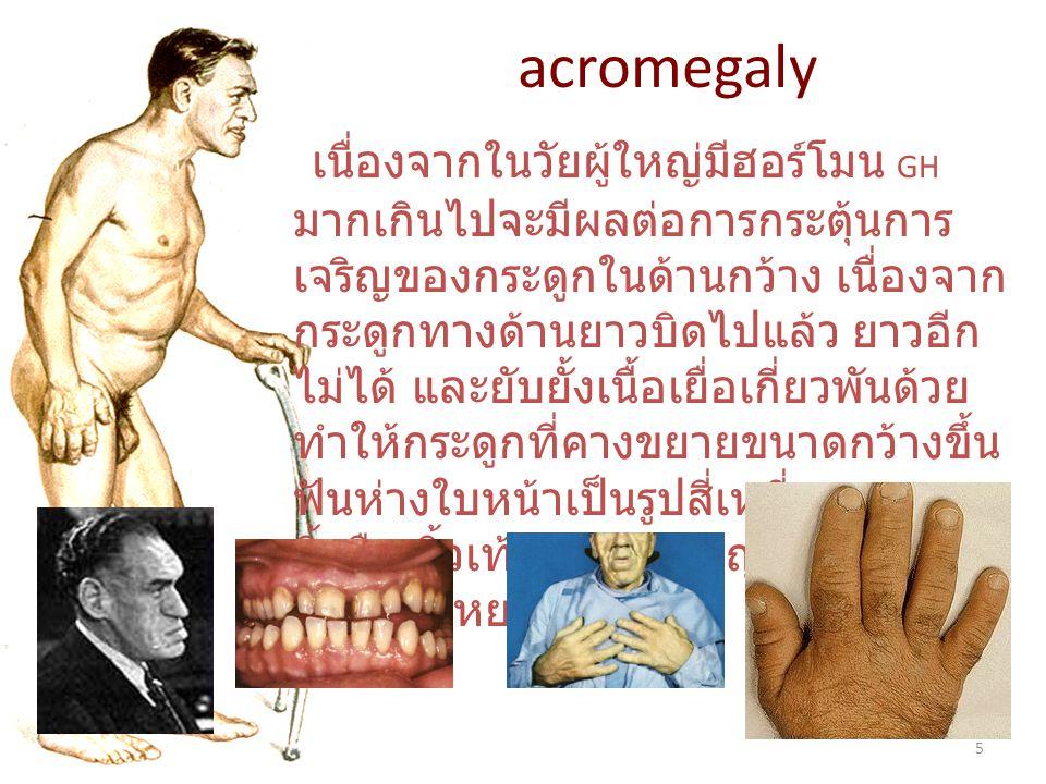 5 acromegaly เนื่องจากในวัยผู้ใหญ่มีฮอร์โมน GH มากเกินไปจะมีผลต่อการกระตุ้นการ เจริญของกระดูกในด้านกว้าง เนื่องจาก กระดูกทางด้านยาวบิดไปแล้ว ยาวอีก ไม่ได้ และยับยั้งเนื้อเยื่อเกี่ยวพันด้วย ทำให้กระดูกที่คางขยายขนาดกว้างขึ้น ฟันห่างใบหน้าเป็นรูปสี่เหลี่ยมคางหมู นิ้วมือ นิ้วเท้ามีขนาดใหญ่ขึ้น ผิวหนัง หนาและหยาบ