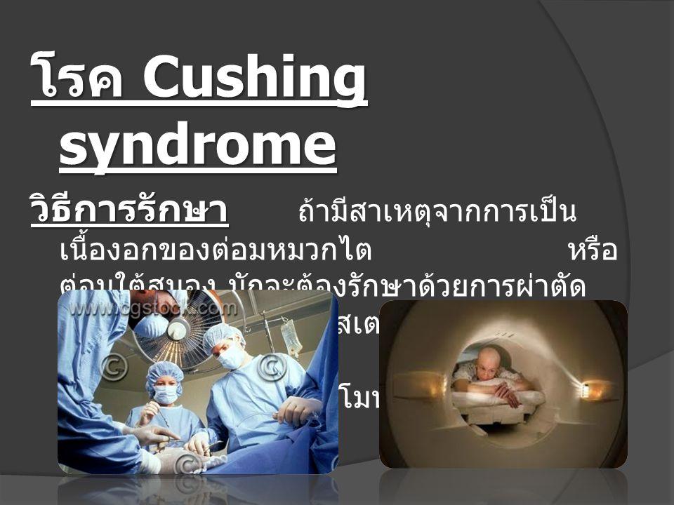 โรค Cushing syndrome วิธีการรักษา วิธีการรักษา ถ้ามีสาเหตุจากการเป็น เนื้องอกของต่อมหมวกไตหรือ ต่อมใต้สมอง มักจะต้องรักษาด้วยการผ่าตัด แล้วให้กินยาสเต