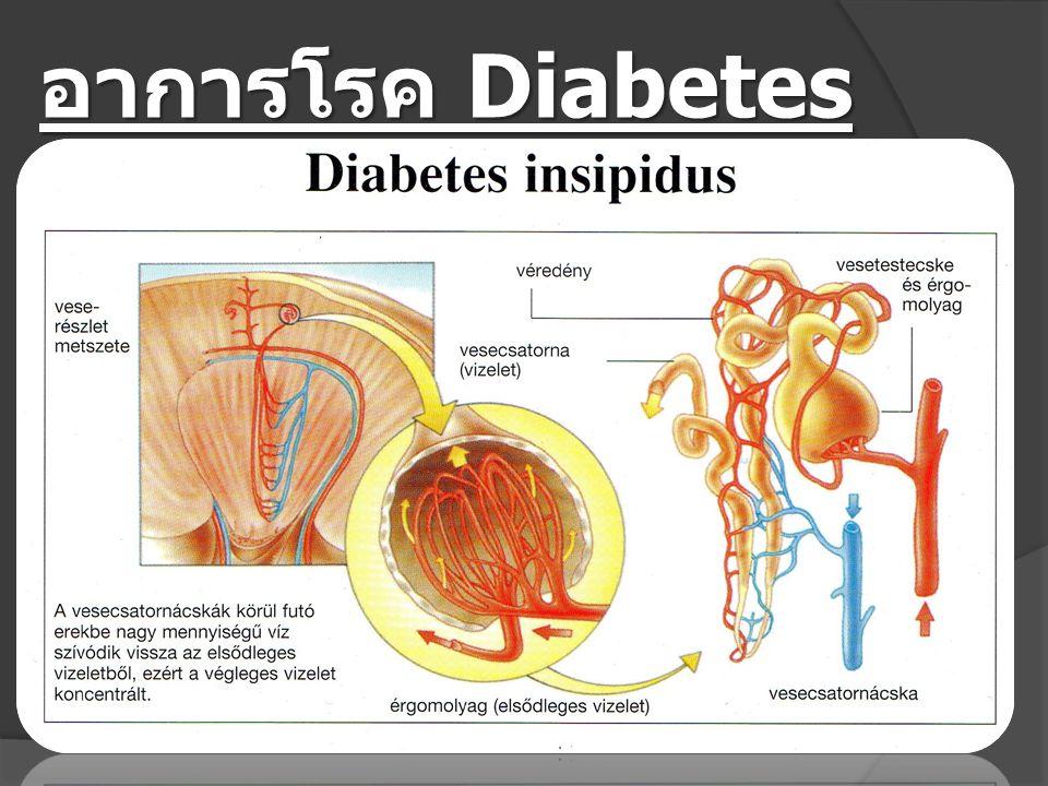 อาการโรค Diabetes insipidus ( เบาจืด )