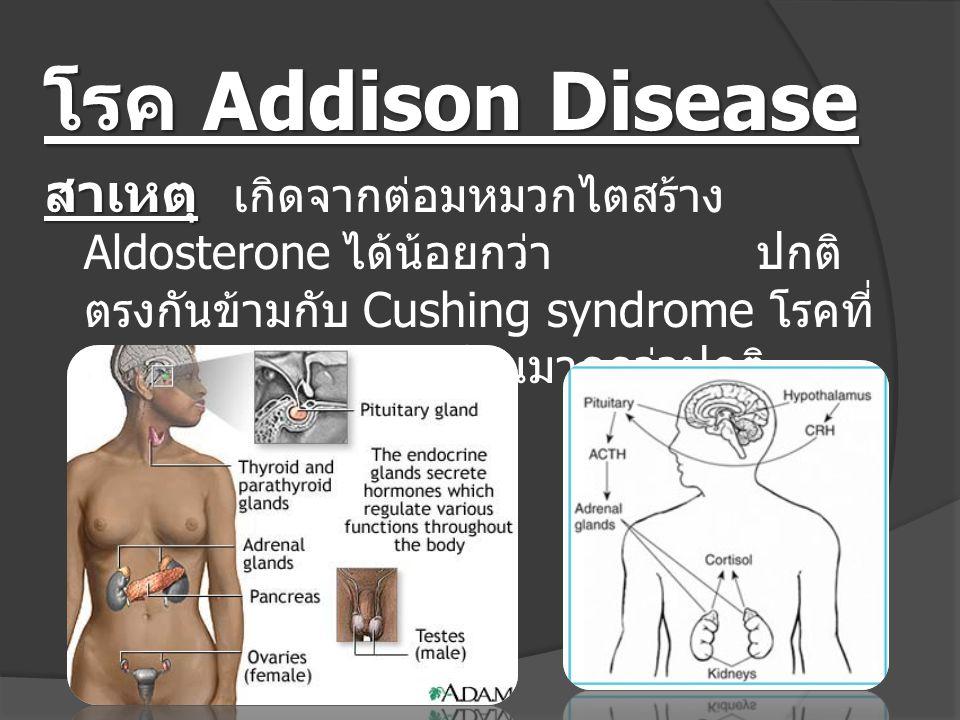 โรค Addison Disease สาเหตุ สาเหตุ เกิดจากต่อมหมวกไตสร้าง Aldosterone ได้น้อยกว่า ปกติ ตรงกันข้ามกับ Cushing syndrome โรคที่ สร้าง ฮอร์โมนมากกว่าปกติ