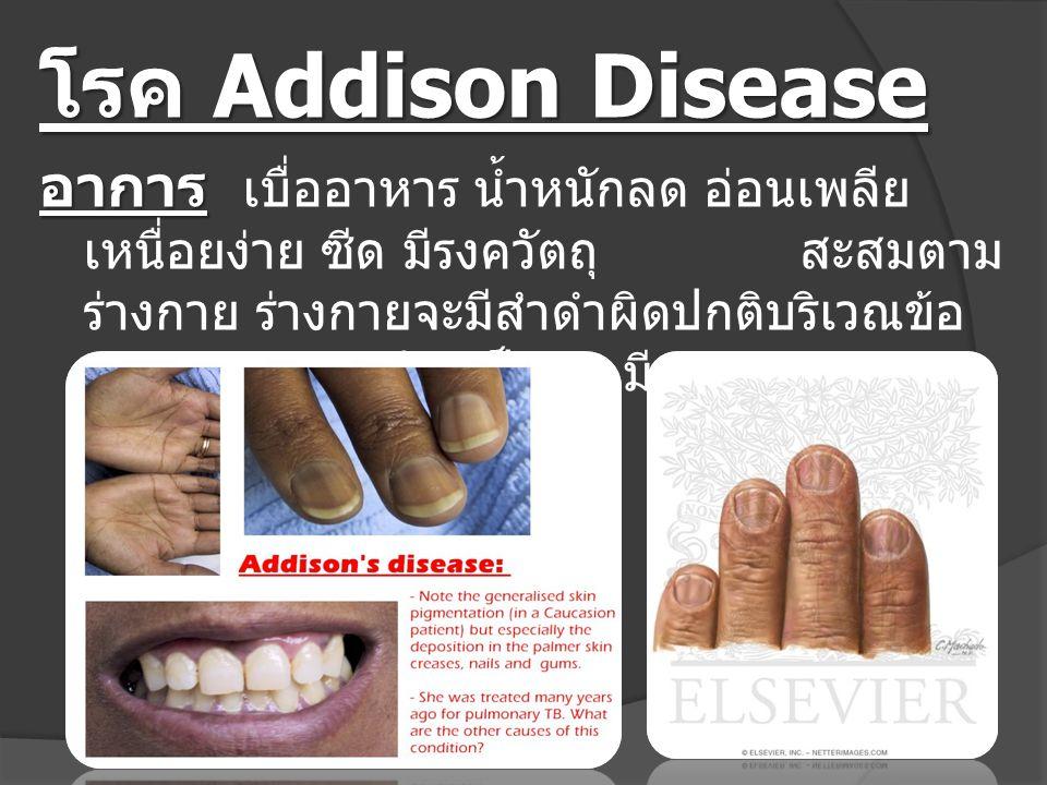 โรค Addison Disease อาการ อาการ เบื่ออาหาร น้ำหนักลด อ่อนเพลีย เหนื่อยง่าย ซีด มีรงควัตถุ สะสมตาม ร่างกาย ร่างกายจะมีสำดำผิดปกติบริเวณข้อ เข่า ข้อ พับ