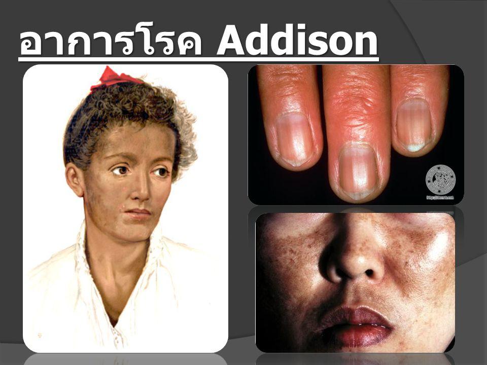 อาการโรค Addison Disease