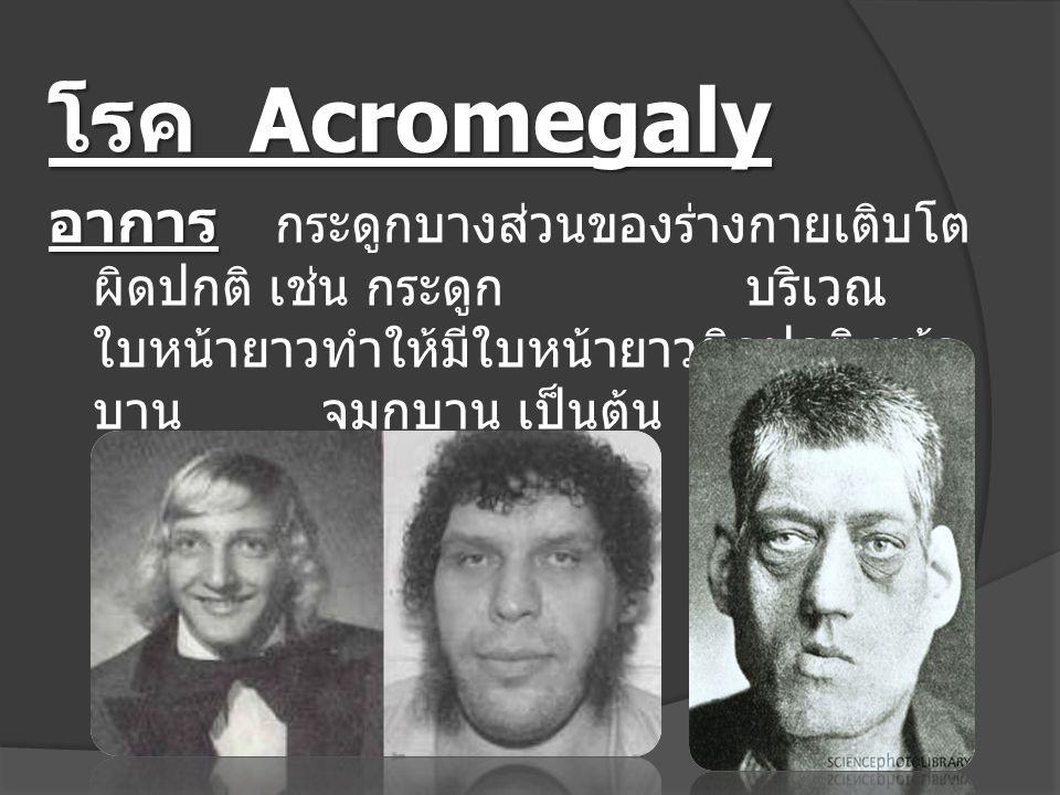 โรค Acromegaly อาการ อาการ กระดูกบางส่วนของร่างกายเติบโต ผิดปกติ เช่น กระดูก บริเวณ ใบหน้ายาวทำให้มีใบหน้ายาวผิดปกติ หน้า บาน จมูกบาน เป็นต้น