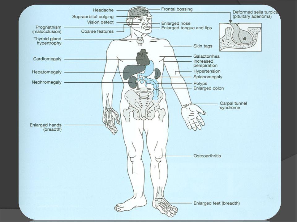 Cushing Syndrome Cushing Syndrome