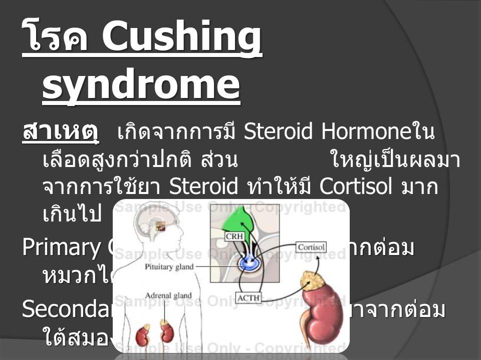 โรค Cushing syndrome อาการ อาการ ใบหน้าหน้าอูมขึ้น จนหน้ากลมเป็นวง พระจันทร์ มีอาการ หนอกควาย ( Buffalo Hump) รูปร่างอ้วน แขนขาเล็ก ท้อง แตกลาย ผิวหนังคล้ำ มีสิวขึ้น ความดันโลหิตสูง กระดูกผุ กร่อน อ่อนเพลีย หมดแรง เป็นต้น