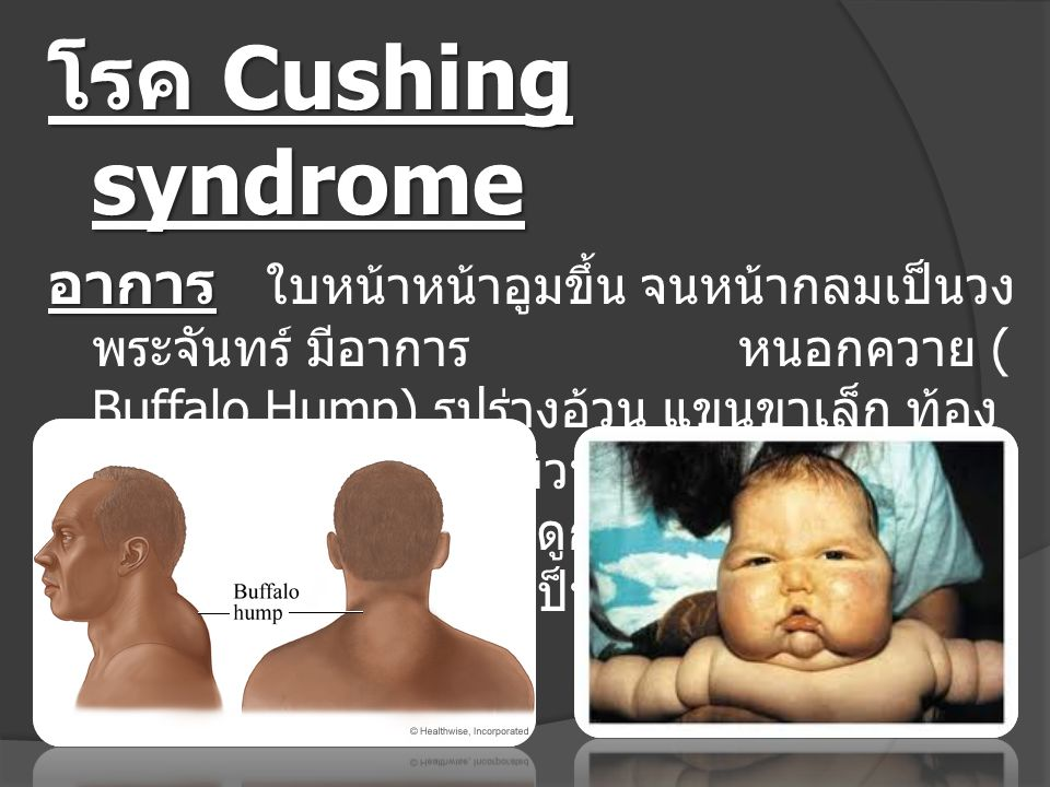 โรค Cushing syndrome อาการ อาการ ใบหน้าหน้าอูมขึ้น จนหน้ากลมเป็นวง พระจันทร์ มีอาการ หนอกควาย ( Buffalo Hump) รูปร่างอ้วน แขนขาเล็ก ท้อง แตกลาย ผิวหนั