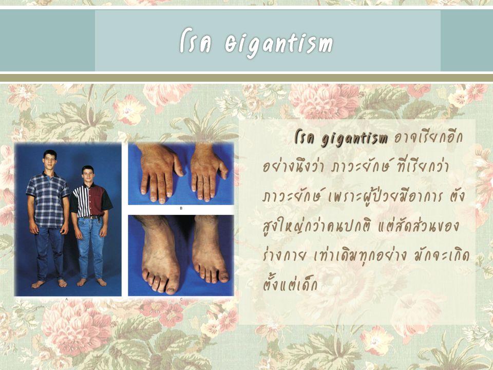 โรค gigantism โรค gigantism อาจเรียกอีก อย่างนึงว่า ภาวะยักษ์ ที่เรียกว่า ภาวะยักษ์ เพราะผู้ป่วยมีอาการ ตัง สูงใหญ่กว่าคนปกติ แต่สัดส่วนของ ร่างกาย เท่าเดิมทุกอย่าง มักจะเกิด ตั้งแต่เด็ก