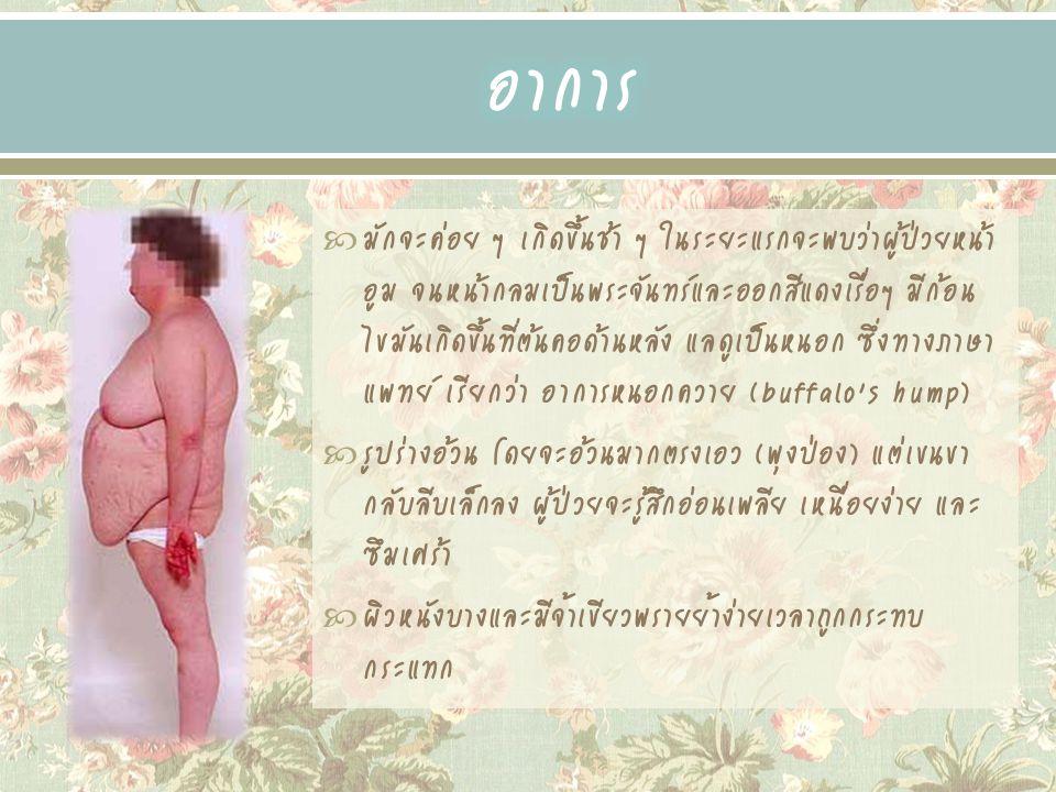  มักมีสิวขึ้นและมีขนอ่อนขึ้นที่หน้า ลำตัวและแขนขา กระดูกอาจผุกร่อน มักทำให้มีอาการปวดหลัง (เพราะ กระดูกสันหลังผุ)  อาจมีความดันโลหิตสูง หรือ มีอาการของเบาหวาน  ผู้หญิงอาจมีเสียงแหบห้าว และมีขนมากแบบผู้ชาย ประจำเดือนมักจะออกน้อยหรือไม่มาเลย  ผู้ป่วยอาจไม่มีความรู้สึกทางเพศ อาจมีอารมณ์ แปรปรวน หรือกลายเป็นโรคจิต