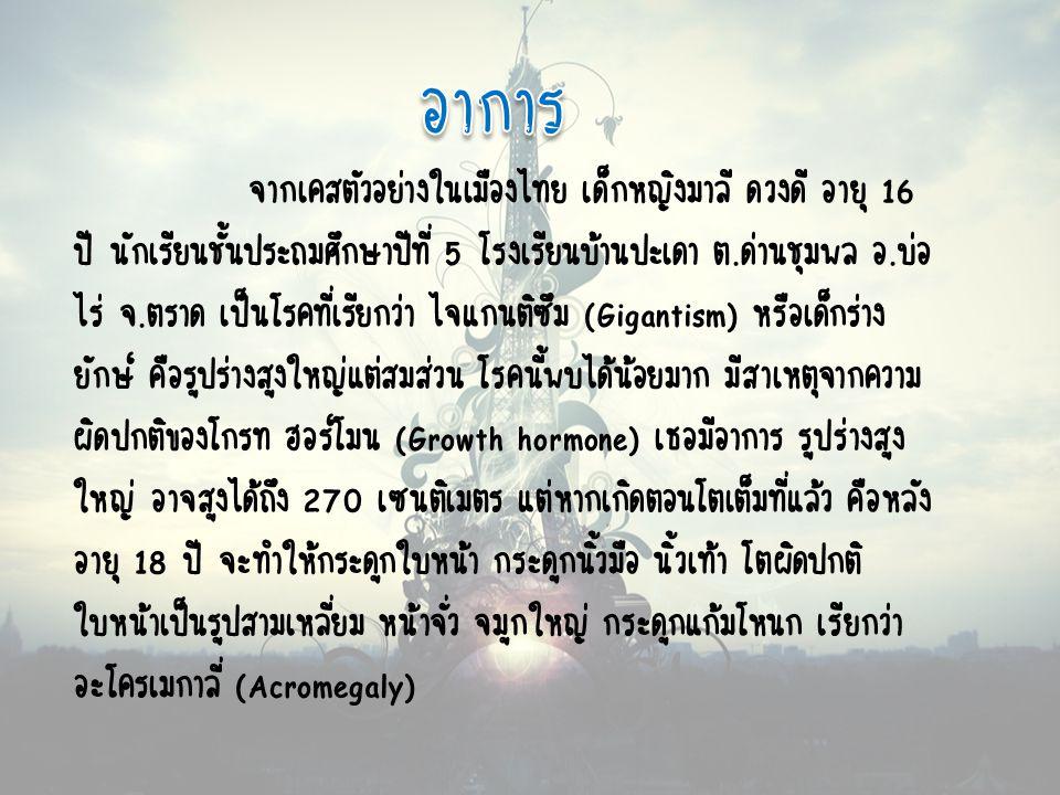 จากเคสตัวอย่างในเมืองไทย เด็กหญิงมาลี ดวงดี อายุ 16 ปี นักเรียนชั้นประถมศึกษาปีที่ 5 โรงเรียนบ้านปะเดา ต.ด่านชุมพล อ.บ่อ ไร่ จ.ตราด เป็นโรคที่เรียกว่า ไจแกนติซึม (Gigantism) หรือเด็กร่าง ยักษ์ คือรูปร่างสูงใหญ่แต่สมส่วน โรคนี้พบได้น้อยมาก มีสาเหตุจากความ ผิดปกติของโกรท ฮอร์โมน (Growth hormone) เธอมีอาการ รูปร่างสูง ใหญ่ อาจสูงได้ถึง 270 เซนติเมตร แต่หากเกิดตอนโตเต็มที่แล้ว คือหลัง อายุ 18 ปี จะทำให้กระดูกใบหน้า กระดูกนิ้วมือ นิ้วเท้า โตผิดปกติ ใบหน้าเป็นรูปสามเหลี่ยม หน้าจั่ว จมูกใหญ่ กระดูกแก้มโหนก เรียกว่า อะโครเมกาลี่ (Acromegaly)