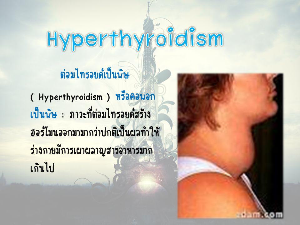 ต่อมไทรอยด์เป็นพิษ ( Hyperthyroidism ) หรือคอพอก เป็นพิษ : ภาวะที่ต่อมไทรอยด์สร้าง ฮอร์โมนออกมามากว่าปกติเป็นผลทำให้ ร่างกายมีการเผาผลาญสารอาหารมาก เกินไป
