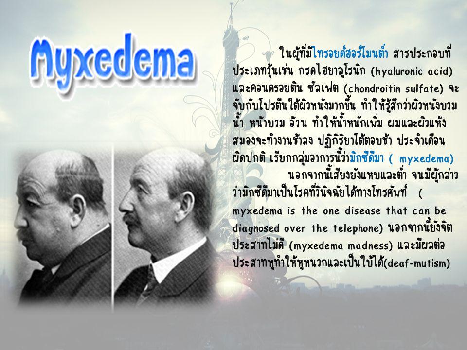 ในผู้ที่มีไทรอยด์ฮอร์โมนต่ำ สารประกอบที่ ประเภทวุ้นเช่น กรดไฮยาลูโรนิก (hyaluronic acid) และคอนดรอยติน ซัลเฟต (chondroitin sulfate) จะ จับกับโปรตีนใต้