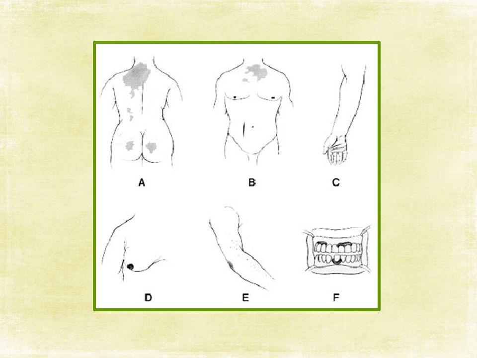 อาการ มักจะค่อยๆ เกิดขึ้นช้าๆ ด้วยอาการเบื่ออาหารน้ำหนักลด อ่อนเพลีย เหนื่อยง่าย และซีด อาจมีอาการท้องเสียหรือท้องผูกบ่อย ท้องอืดท้องเฟ้อ ปวด ท้อง คลื่นไส้ อาเจียน ผิวหนังจะมีสีดำที่บริเวณที่มีรอยถูไถ เช่น ข้อเข่า ข้อพับ ข้อศอก ที่หน้า หัวนม ลายมือ รอยแผลผ่าตัด เป็นต้น และบริเวณเยื่อเมือกใน ช่องปาก อาจมีรอยตกกระดำๆ บางคนผิวหนังอาจมีรอยด่างขาวร่วมด้วย ผู้ป่วยมักมีความดันโลหิตต่ำ ทำให้มีอาการหน้ามืด วิงเวียนเวลาลุกขึ้น เร็วๆ ขนรักแร้และขนในบริเวณอวัยวะสืบพันธุ์ร่วง ซึ่งจะเห็นชัดในผู้หญิง ผู้ป่วยอาจมีอารมณ์อ่อนไหว ซึมเศร้า หรือมีอาการของโรคจิต