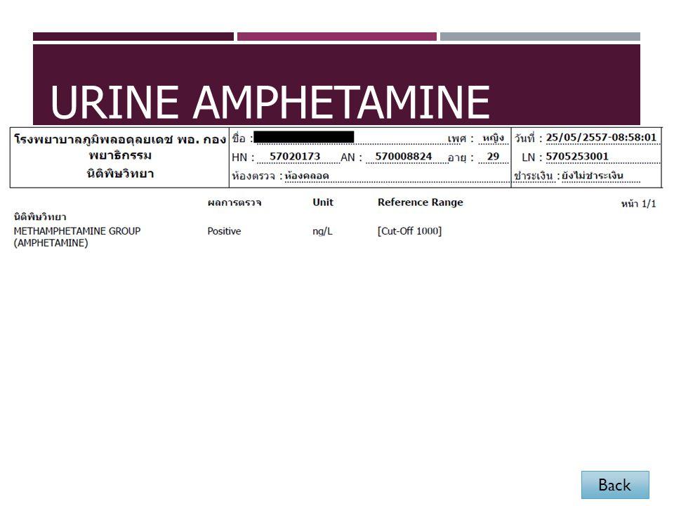 URINE AMPHETAMINE Back