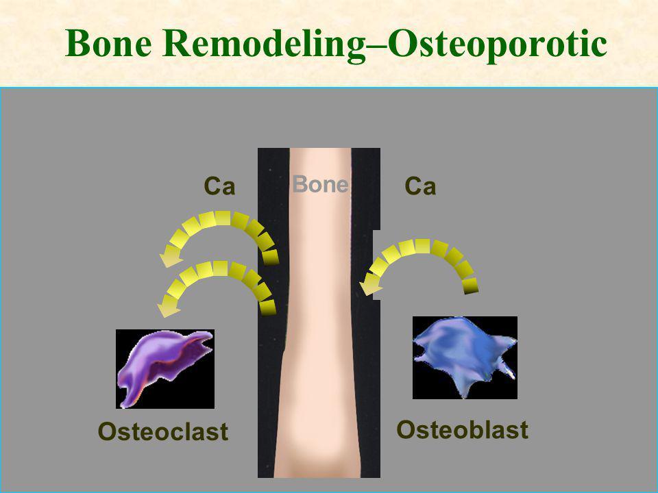 Bone Remodeling–Osteoporotic Bone Osteoblast Osteoclast Ca