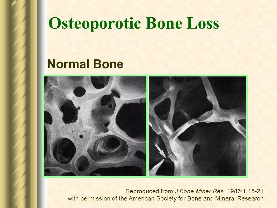 Normal Bone Reproduced from J Bone Miner Res. 1986;1:15-21 with permission of the American Society for Bone and Mineral Research Osteoporotic Bone Los