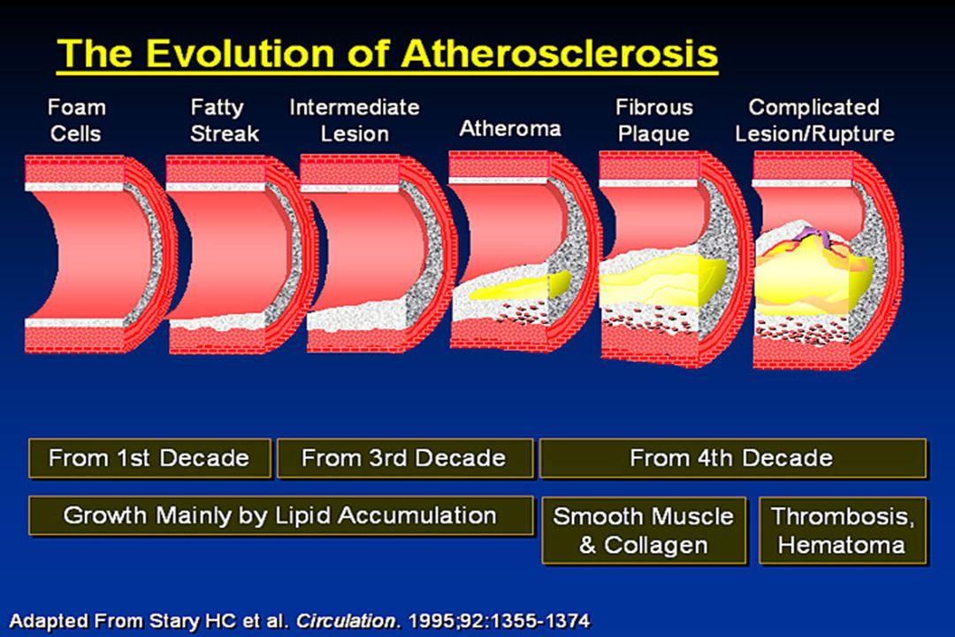 White-coat vs.Sustained Hypertension in the Elderly Kario K, et al.