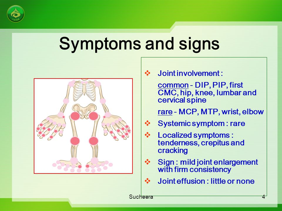 Symptoms and signs  Joint involvement : common - DIP, PIP, first CMC, hip, knee, lumbar and cervical spine rare - MCP, MTP, wrist, elbow  Systemic s