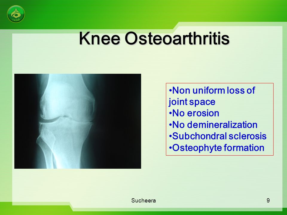 Knee Osteoarthritis Non uniform loss of joint space No erosion No demineralization Subchondral sclerosis Osteophyte formation 9