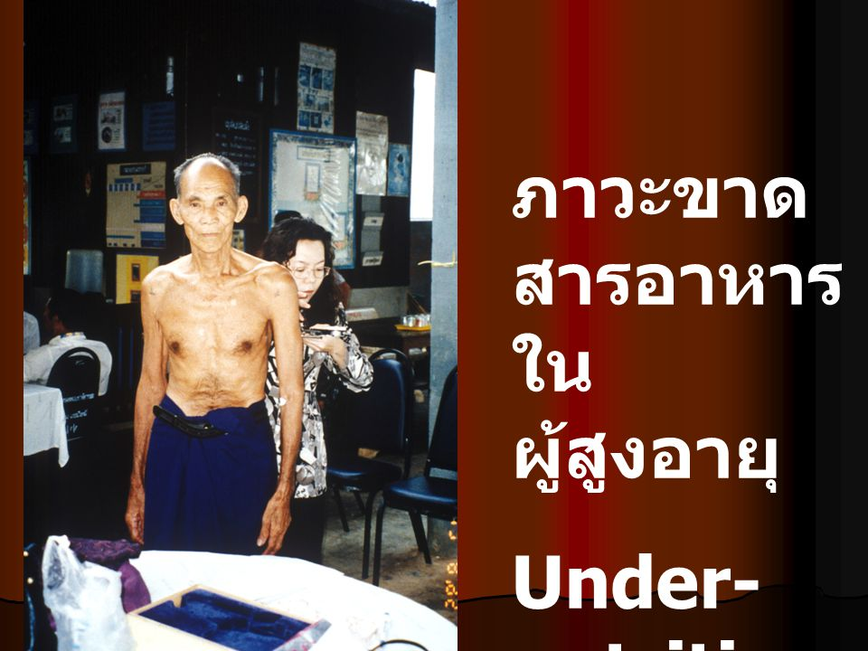 Why under-nutrition is so important among older patients ?_common Protein calorie malnutrition Developed country: Developed country: community 15%, hospital 23-62%, nursing home 85% Thailand : community Thailand : community ชาย (%) หญิง (%) กลุ่มอายุ 60 – 69 ปี 13 – 27 5 – 24 กลุ่มอายุ 70 – 79 ปี 16 – 39 11 – 39 กลุ่มอายุ > 80 ปี 20 – 39 18 – 54 ประเสริฐ อัสสันตชัย การอบรมด้านผู้สูงอายุและความชรา พ.