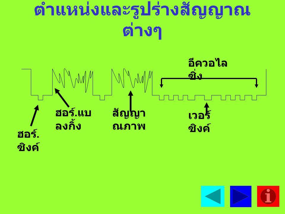 4. สัญญาณเวอร์ติ คอลแบล๊งกิ้ง คือสัญญาณลบเส้นสะบัดกลับ ทางแนวตั้งเพื่อไม่ให้ เส้นสะบัดกลับปรากฏที่หน้าจอ 5. สัญญาณ อีควอไลซิ่งพัซ์ คือสัญญาณที่รักษารู