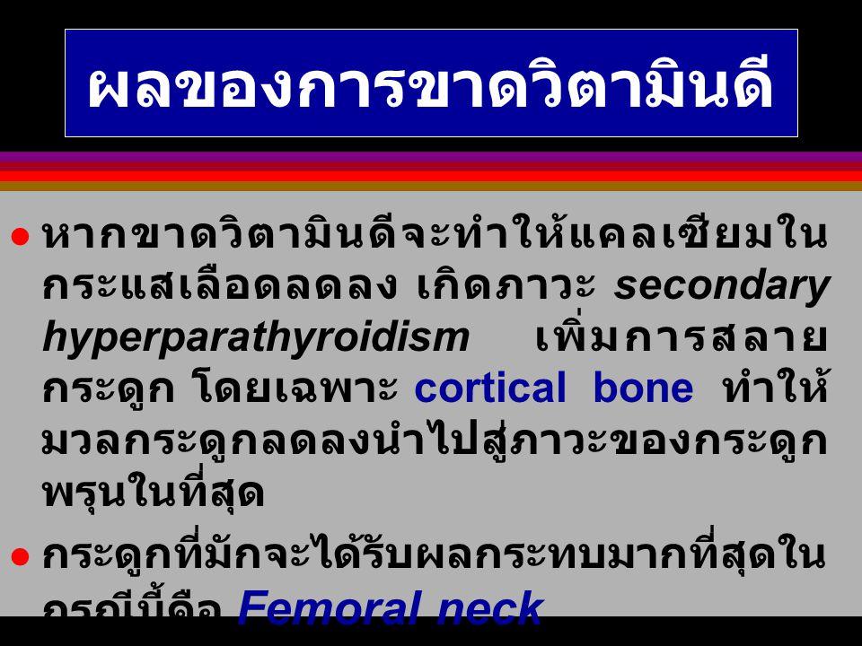 สรุป ระดับของ vitamin D deficiency <= 35 ng/ml ระดับของ vitamin D deficiency <= 35 ng/ml Vitamin D deficiency เพิ่มความเสี่ยง ต่อโรคกระดูกพรุนของ femoral neck (RR 2.87; p<0.03) Vitamin D deficiency เพิ่มความเสี่ยง ต่อโรคกระดูกพรุนของ femoral neck (RR 2.87; p<0.03) Prevalence of vitamin D deficiency of urban elderly = 65.35% Prevalence of vitamin D deficiency of urban elderly = 65.35%