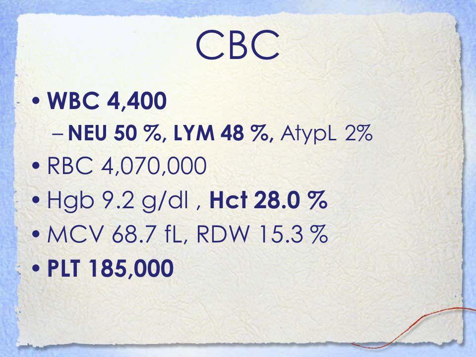 CBC WBC 4,400 – NEU 50 %, LYM 48 %, AtypL 2% RBC 4,070,000 Hgb 9.2 g/dl, Hct 28.0 % MCV 68.7 fL, RDW 15.3 % PLT 185,000