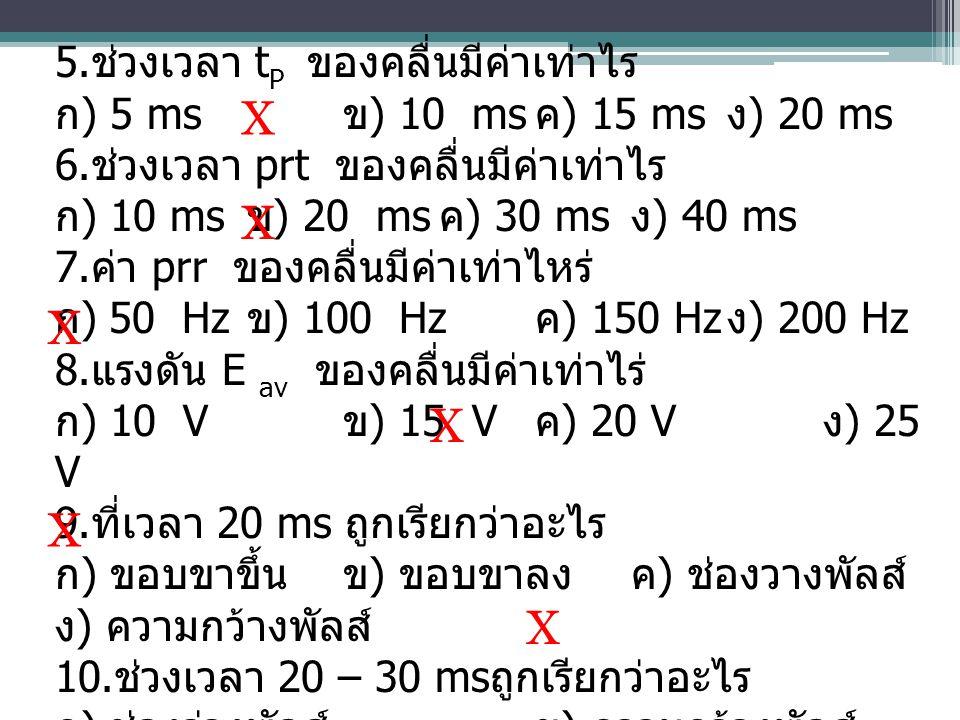 5. ช่วงเวลา t P ของคลื่นมีค่าเท่าไร ก ) 5 ms ข ) 10 ms ค ) 15 ms ง ) 20 ms 6. ช่วงเวลา prt ของคลื่นมีค่าเท่าไร ก ) 10 ms ข ) 20 ms ค ) 30 ms ง ) 40 ms