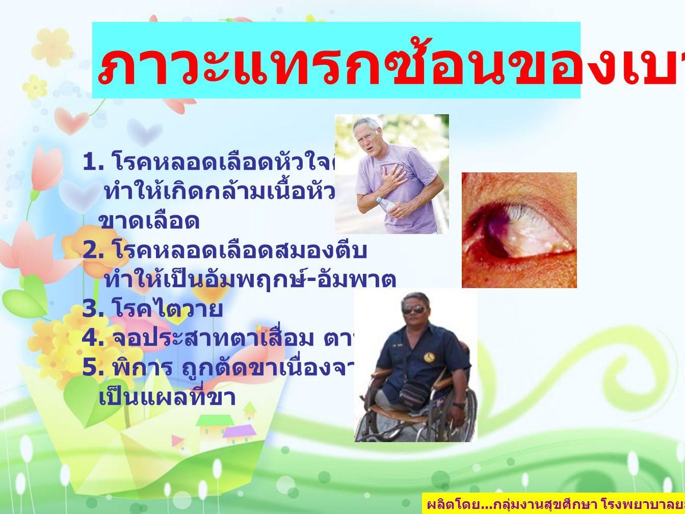 ผลิตโดย... กลุ่มงานสุขศึกษา โรงพยาบาลยะลา หน้า 4 1. โรคหลอดเลือดหัวใจตีบ ทำให้เกิดกล้ามเนื้อหัวใจ ขาดเลือด 2. โรคหลอดเลือดสมองตีบ ทำให้เป็นอัมพฤกษ์ -