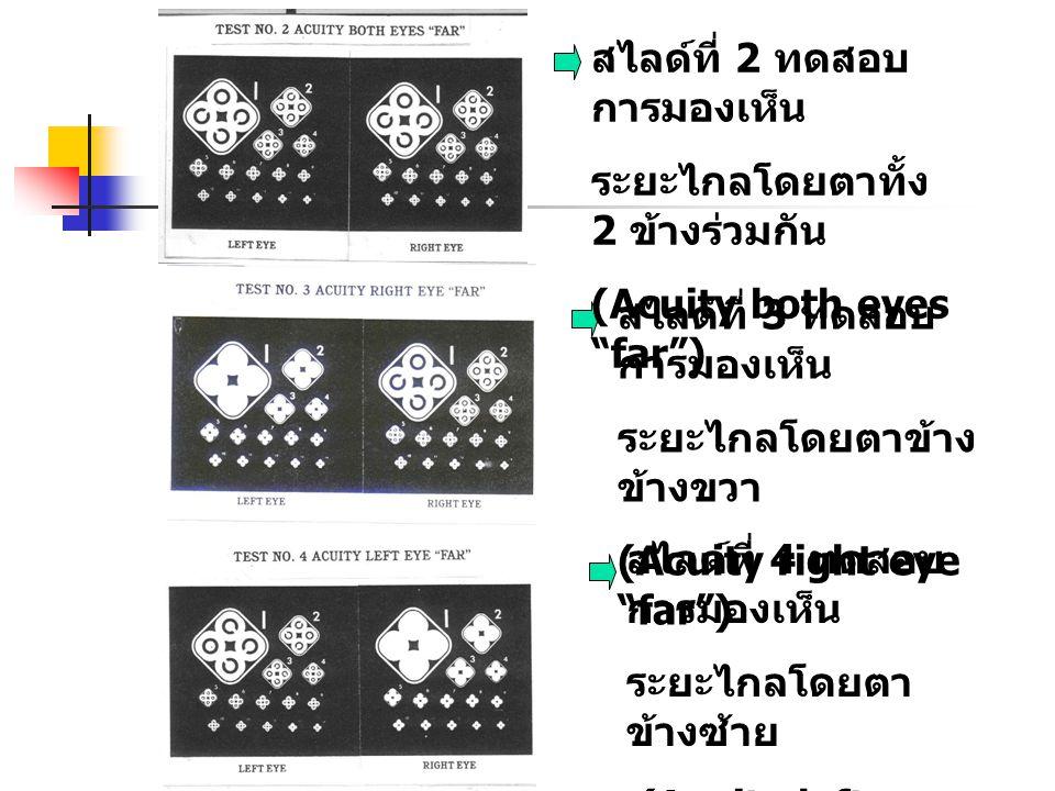 """สไลด์ที่ 3 ทดสอบ การมองเห็น ระยะไกลโดยตาข้าง ข้างขวา (Acuity right eye """"far"""") สไลด์ที่ 4 ทดสอบ การมองเห็น ระยะไกลโดยตา ข้างซ้าย (Acuity left eye """"far"""""""