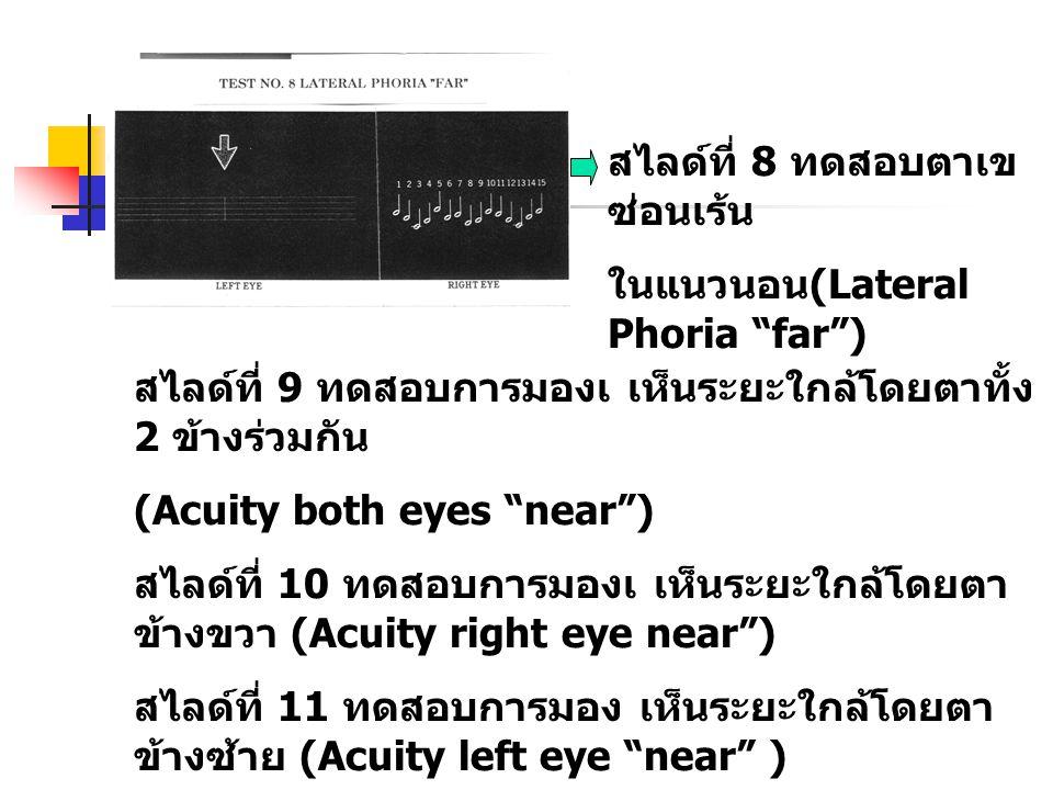 """สไลด์ที่ 8 ทดสอบตาเข ซ่อนเร้น ในแนวนอน (Lateral Phoria """"far"""") สไลด์ที่ 9 ทดสอบการมองเ เห็นระยะใกล้โดยตาทั้ง 2 ข้างร่วมกัน (Acuity both eyes """"near"""") สไ"""