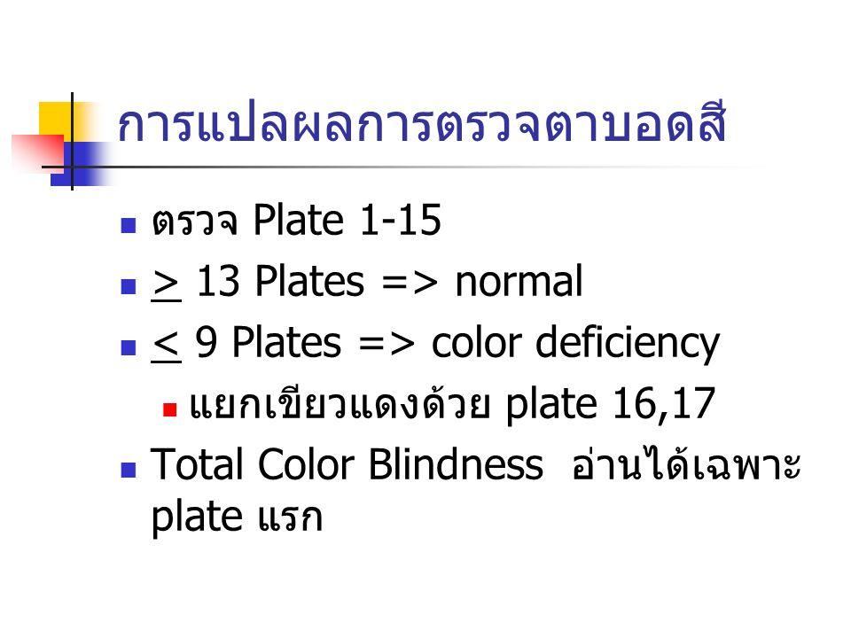 การแปลผลการตรวจตาบอดสี ตรวจ Plate 1-15 > 13 Plates => normal color deficiency แยกเขียวแดงด้วย plate 16,17 Total Color Blindness อ่านได้เฉพาะ plate แรก