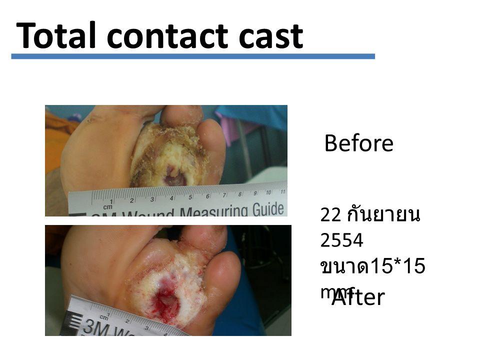 Total contact cast Before After 22 กันยายน 2554 ขนาด 15*15 mm