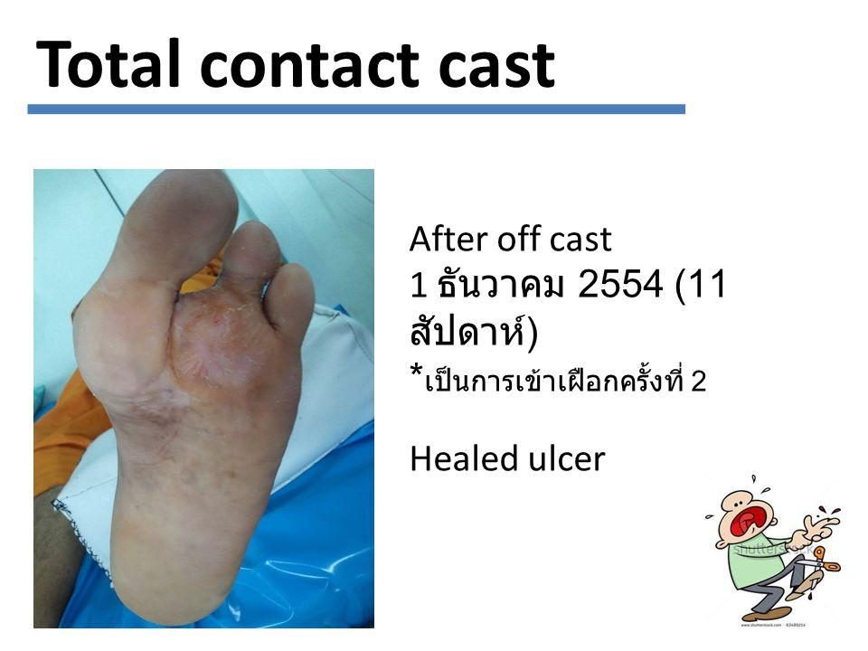 Total contact cast After off cast 1 ธันวาคม 2554 (11 สัปดาห์ ) * เป็นการเข้าเฝือกครั้งที่ 2 Healed ulcer