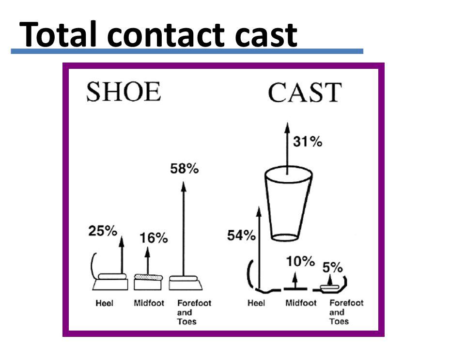 Total contact cast