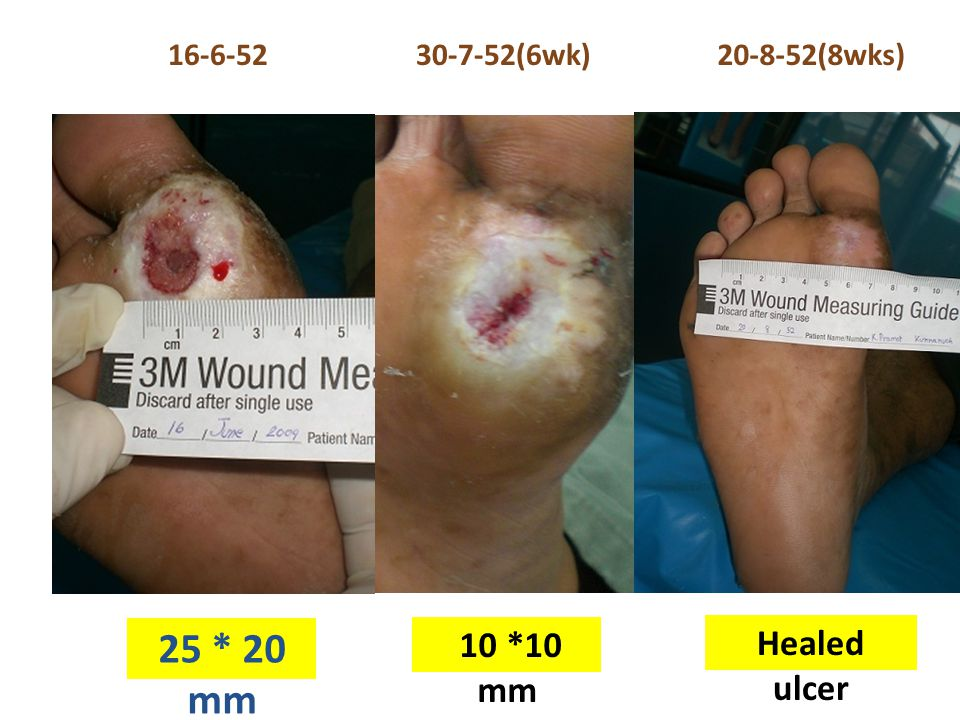 16-6-5230-7-52(6wk) 25 * 20 mm Healed ulcer 10 *10 mm 20-8-52(8wks)