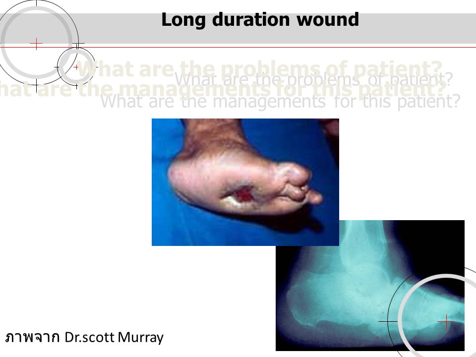 Long duration wound What are the problems of patient? What are the managements for this patient? ภาพจาก Dr.scott Murray