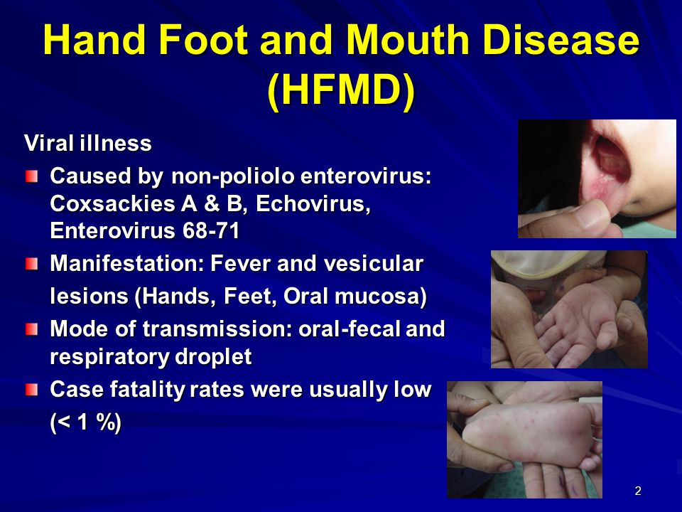 13 Clinical Manifestations of Fatal HFMD Cases, Thailand, 2006 Percent Symptom