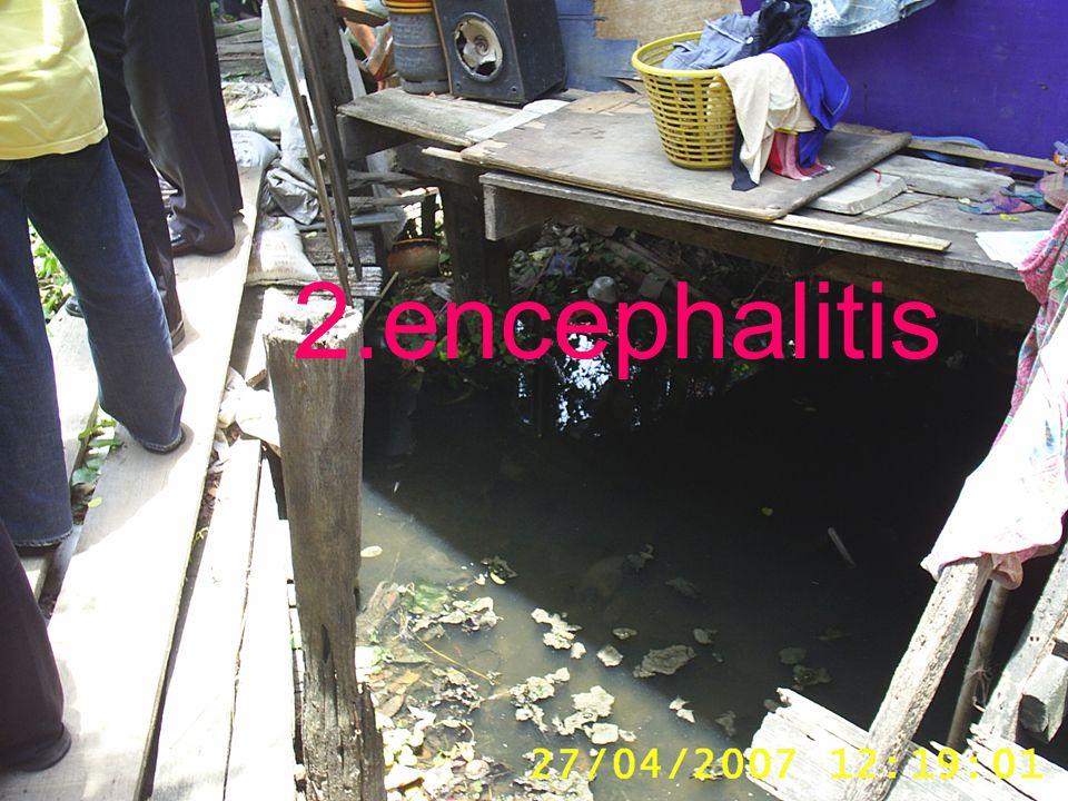 2.encephalitis