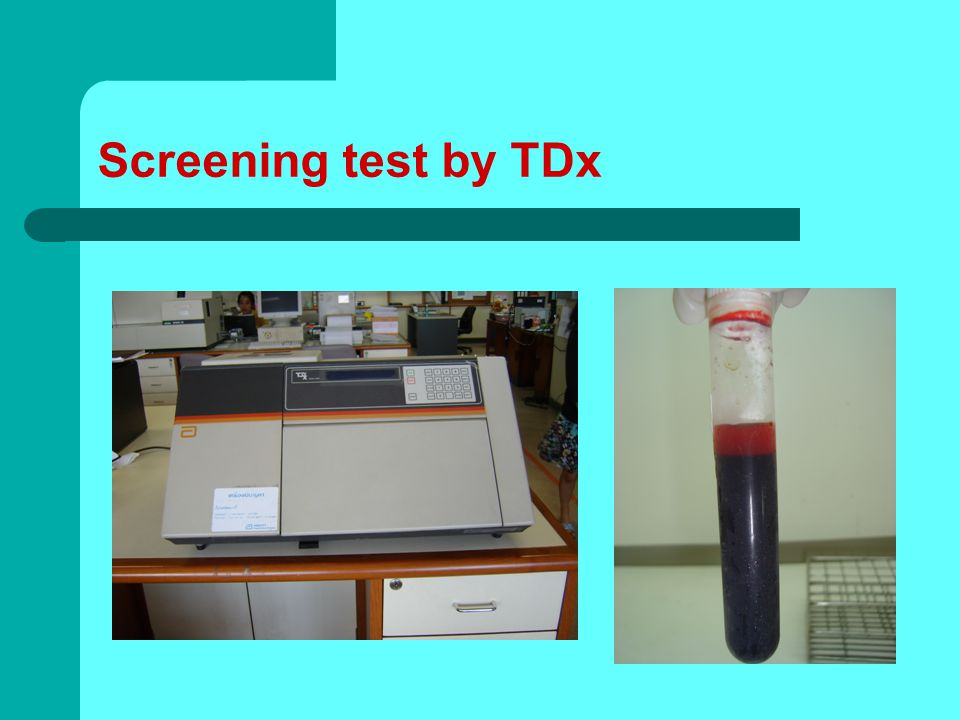 Screening test by TDx
