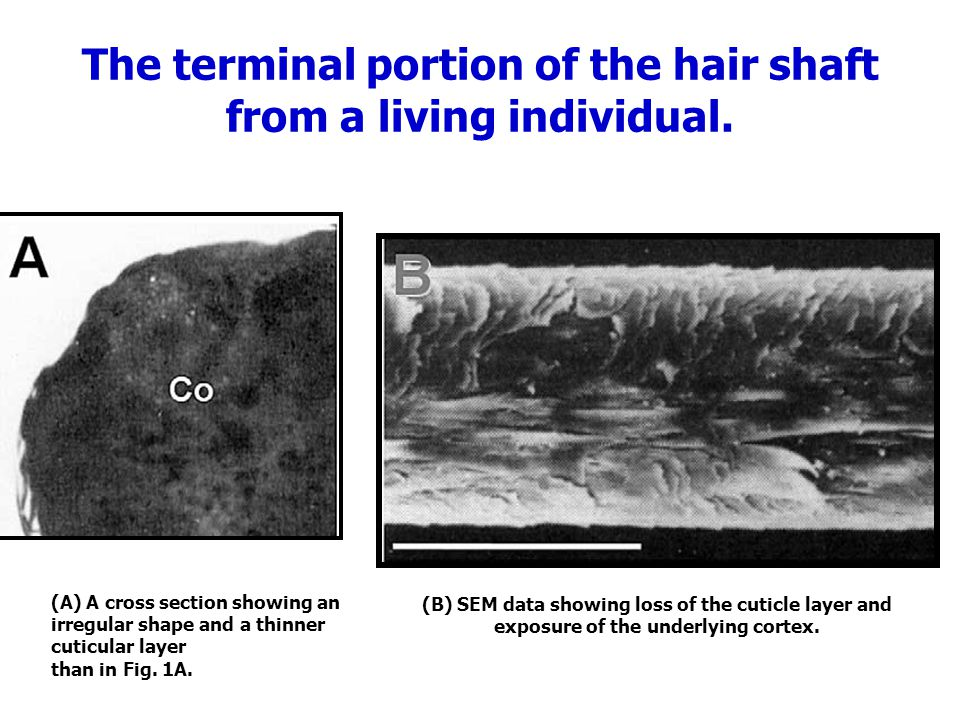 The terminal portion of the hair shaft from a living individual. (A) A cross section showing an irregular shape and a thinner cuticular layer than in