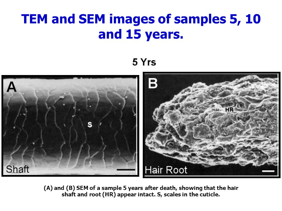 TEM and SEM images of samples 5, 10 and 15 years. (A) and (B) SEM of a sample 5 years after death, showing that the hair shaft and root (HR) appear in