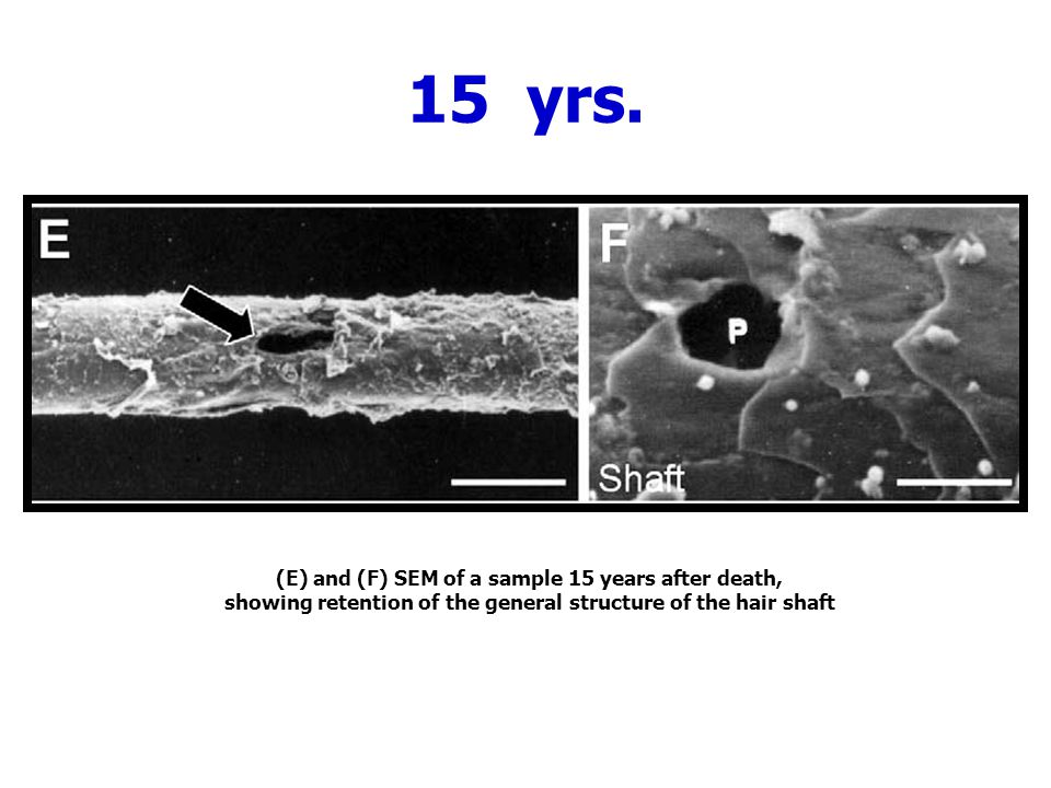 15 yrs. (E) and (F) SEM of a sample 15 years after death, showing retention of the general structure of the hair shaft