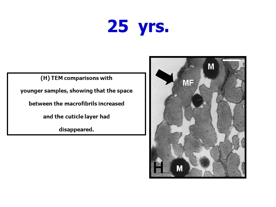 25 yrs. (H) TEM comparisons with younger samples, showing that the space between the macrofibrils increased and the cuticle layer had disappeared.
